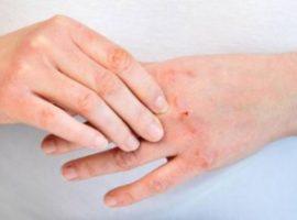Dermatite mani cause e rimedi atopica, seborroica e da contatto